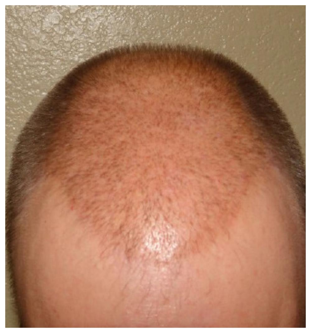 Patient 2- Ten days Post NeoGraft FUE hair transplant image