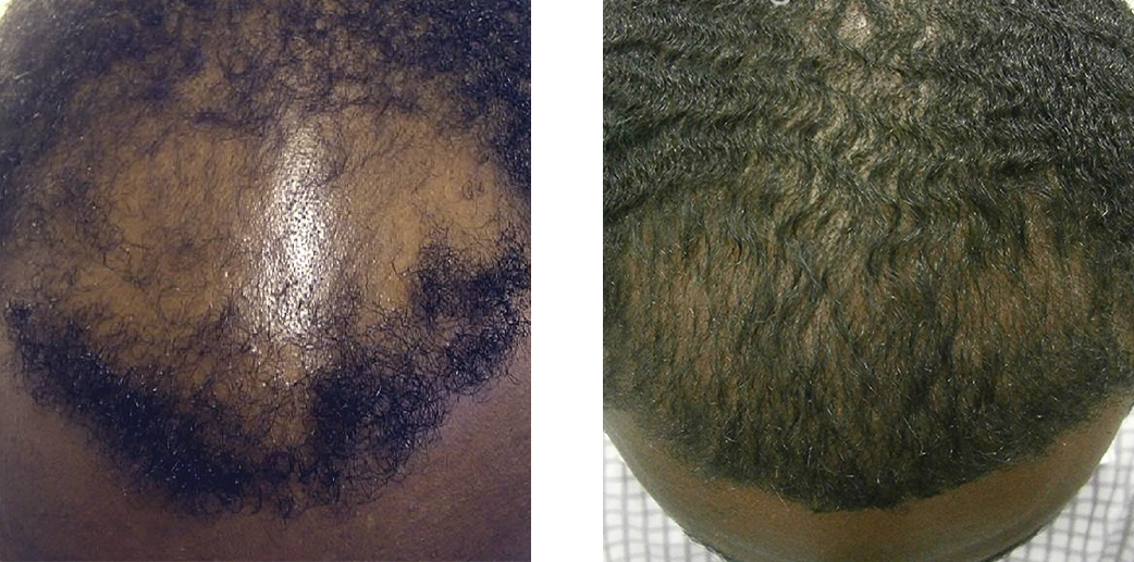 Hair transplant results before and after image