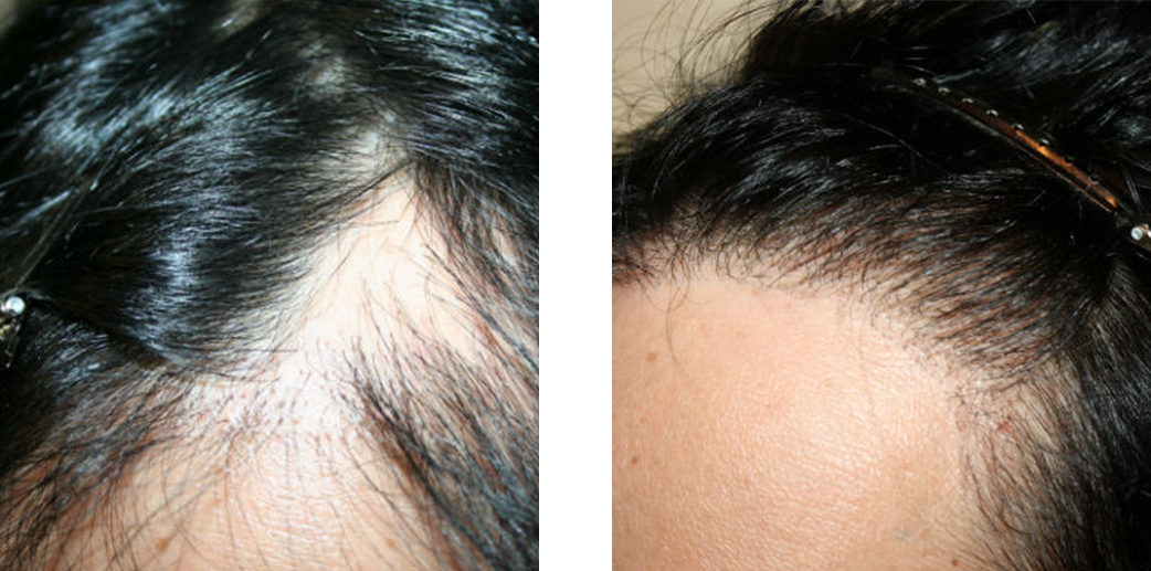Woman before and after hair transplant image