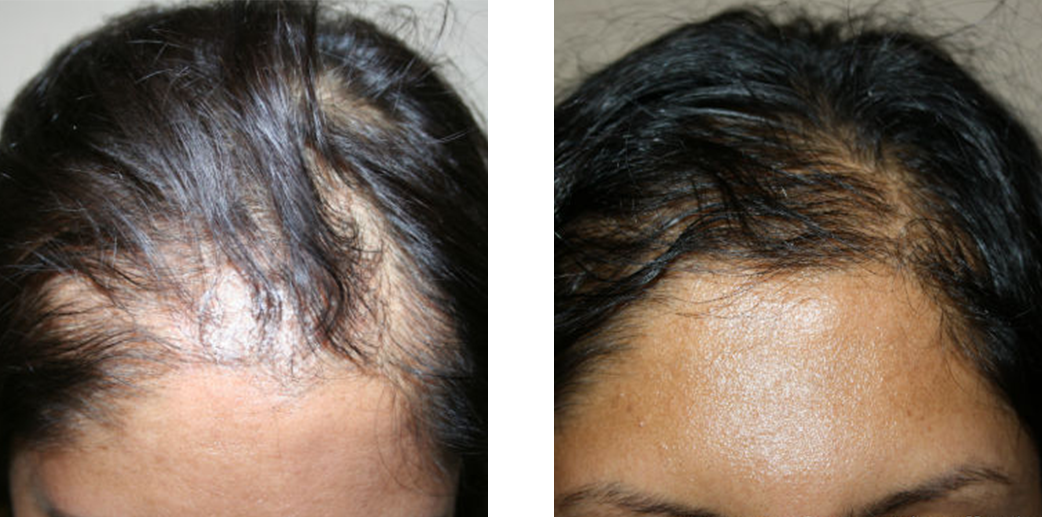 Hair transplant before and after results for a woman