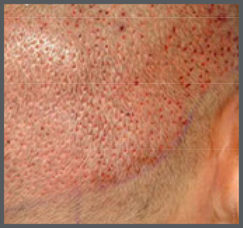 Back of head image after hair transplant