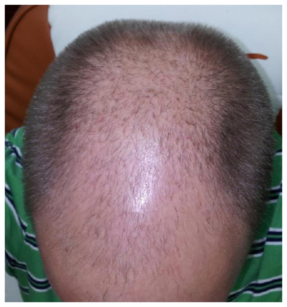 Patient 2- Pre Op head image