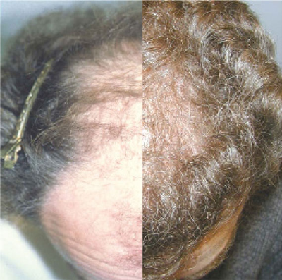 NeoGraft split picture of before and after results