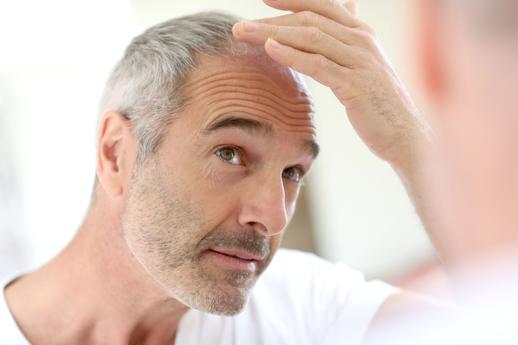 Man looking at his hair loss image